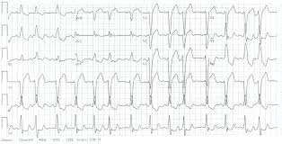 left bundle branch block