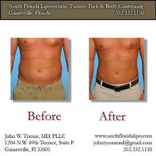 liposuction before and after pics