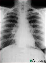 sarcoidosis chest x ray