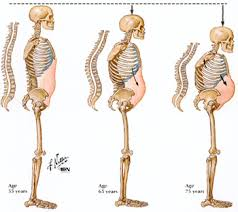 osteoporosis picture
