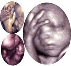 mes a mes embarazo