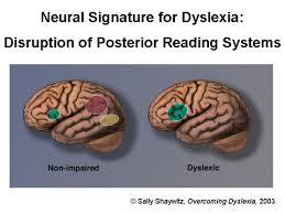 dyslexic brains