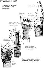 hand contractures