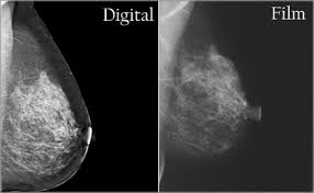 digital mammograms