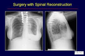 abnormal x ray