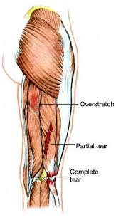 hamstring strained