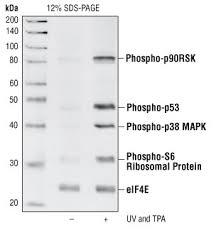 phospho p38
