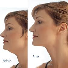 double chin liposuction