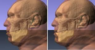 jaw operation