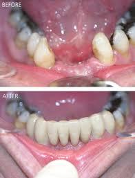 bridge teeth