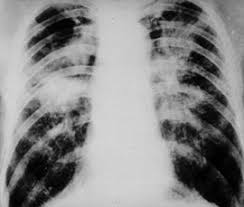 black lung picture