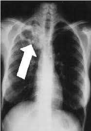 abnormal x rays
