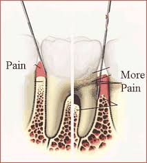 chipped wisdom tooth