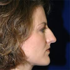 rhinoplasty before and afters