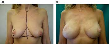 nipple sparing mastectomy,