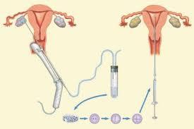 ivf insemination