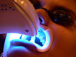 laser dental whitening