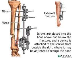 bone fixator