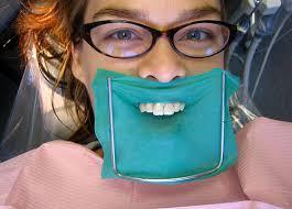 dental dam pictures