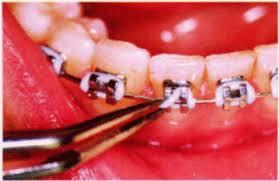 braces ligatures
