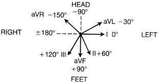 cardiac axis ecg