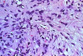 lung cells