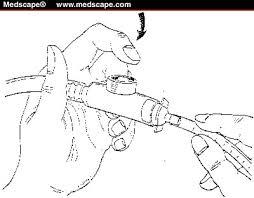 neonatal suctioning