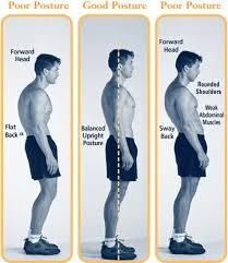 posture problem