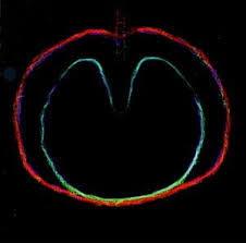 Xtc - Wasp Star (apple Venus Volume 2)
