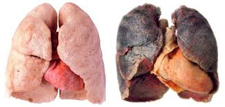 effects of tobacco on the lungs