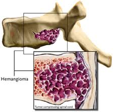 hemangioma vertebrae