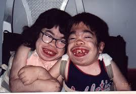 morquio syndrome