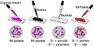 gram stain technique