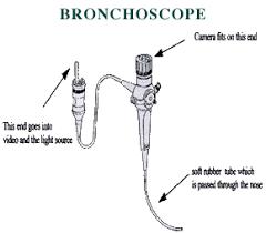 fiber optic bronchoscope