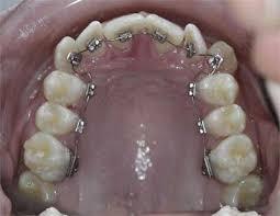 braces lingual