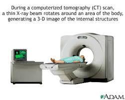 cat scanning