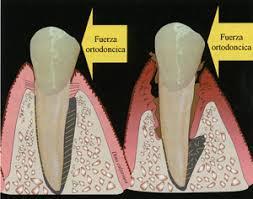 periodontales