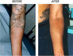laser tattoo removal pictures