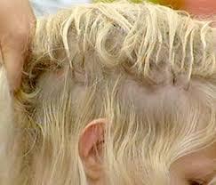 hair extensions thin hair