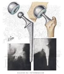 bipolar prosthesis
