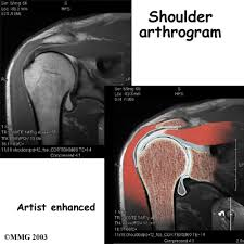 mri shoulder arthrogram