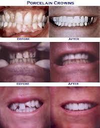 crowns in teeth