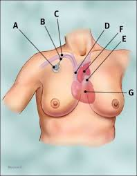 chemo catheter