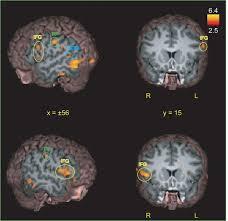 location of brain