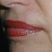 lip reconstruction