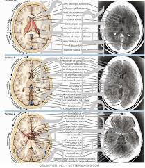anatomy ct
