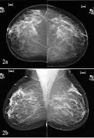 cad mammography