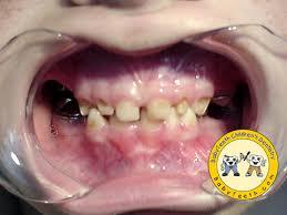 baby teeth cavities