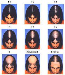 hair loss pattern