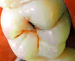 dental caries picture
